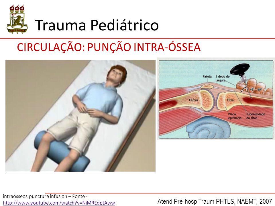 Trauma Pediátrico CIRCULAÇÃO: PUNÇÃO INTRA-ÓSSEA intraósseos puncture infusion – Fonte - http://www.youtube.com/watch?v=NiMREdptAww Atend Pré-hosp Tra