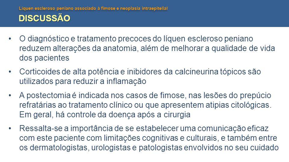Líquen escleroso peniano associado à fimose e neoplasia intraepitelial DISCUSSÃO O diagnóstico e tratamento precoces do líquen escleroso peniano reduzem alterações da anatomia, além de melhorar a qualidade de vida dos pacientes Corticoides de alta potência e inibidores da calcineurina tópicos são utilizados para reduzir a inflamação A postectomia é indicada nos casos de fimose, nas lesões do prepúcio refratárias ao tratamento clínico ou que apresentem atipias citológicas.