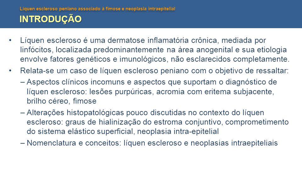 Líquen escleroso peniano associado à fimose e neoplasia intraepitelial INTRODUÇÃO Líquen escleroso é uma dermatose inflamatória crônica, mediada por linfócitos, localizada predominantemente na área anogenital e sua etiologia envolve fatores genéticos e imunológicos, não esclarecidos completamente.