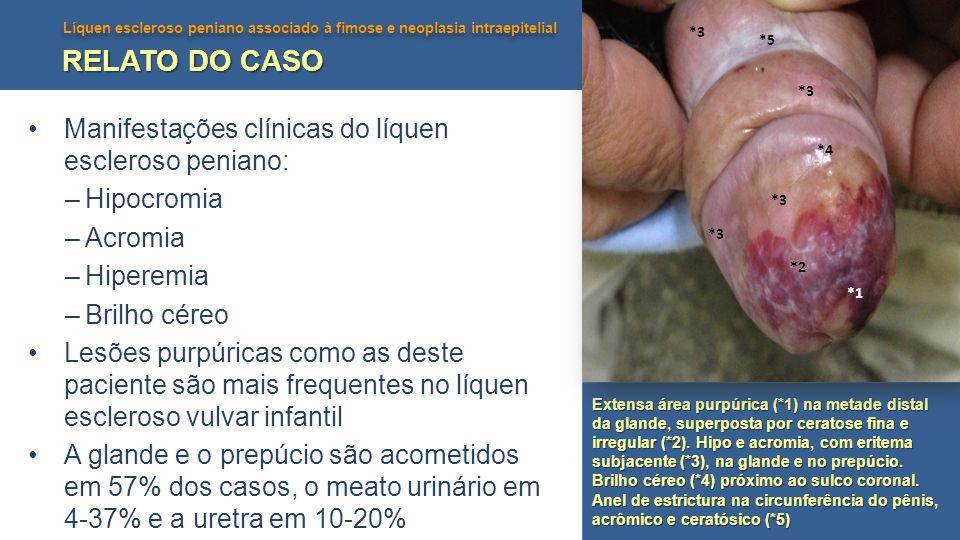 Líquen escleroso peniano associado à fimose e neoplasia intraepitelial RELATO DO CASO Manifestações clínicas do líquen escleroso peniano: –Hipocromia –Acromia –Hiperemia –Brilho céreo Lesões purpúricas como as deste paciente são mais frequentes no líquen escleroso vulvar infantil A glande e o prepúcio são acometidos em 57% dos casos, o meato urinário em 4-37% e a uretra em 10-20% Extensa área purpúrica (*1) na metade distal da glande, superposta por ceratose fina e irregular (*2).