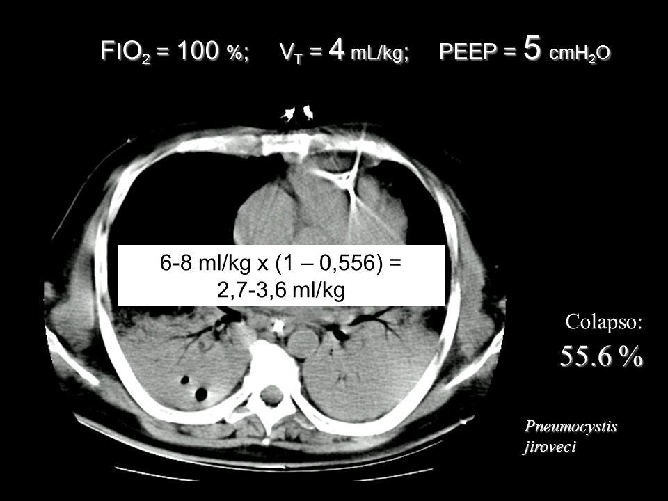 Colapso: 55.6 % Pneumocystisjiroveci F I O 2 = 100 % ; V T = 4 mL/kg ; PEEP = 5 cmH 2 O 6-8 ml/kg x (1 – 0,556) = 2,7-3,6 ml/kg