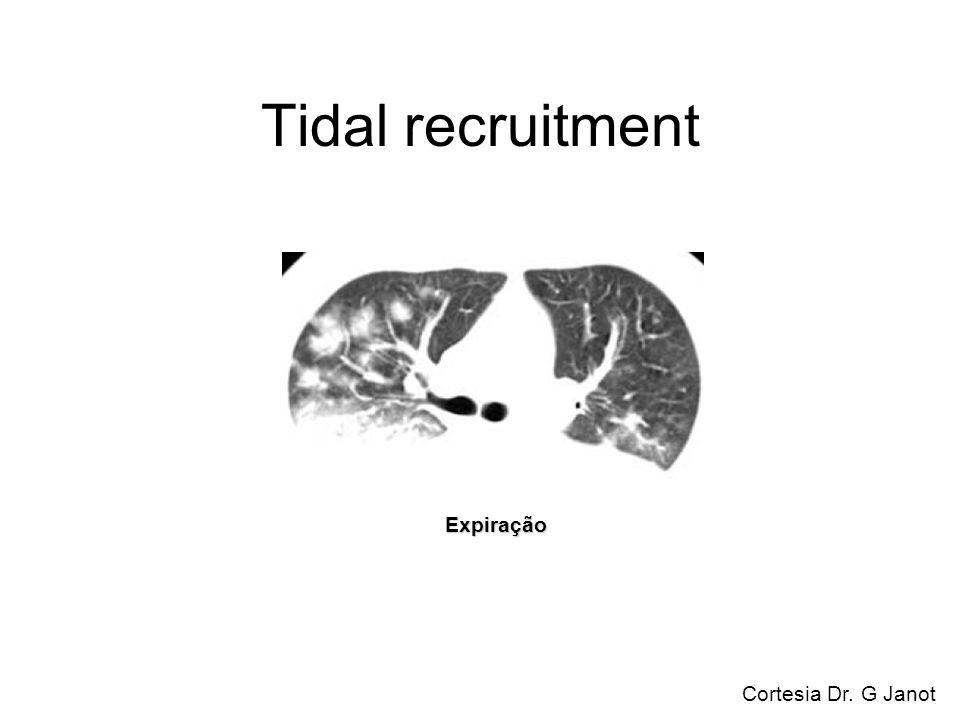 Tidal recruitment Cortesia Dr. G Janot Expiração