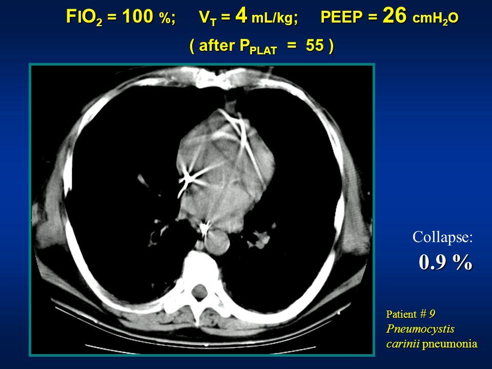 F I O 2 = 100 % ; V T = 4 mL/kg ; PEEP = 26 cmH 2 O ( after P PLAT = 55 ) Collapse: 0.9 % Patient # 9 Pneumocystis carinii pneumonia