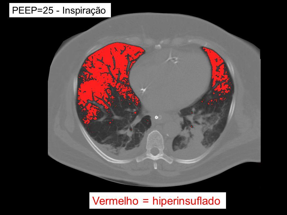 Vermelho = hiperinsuflado PEEP=25 - Inspiração