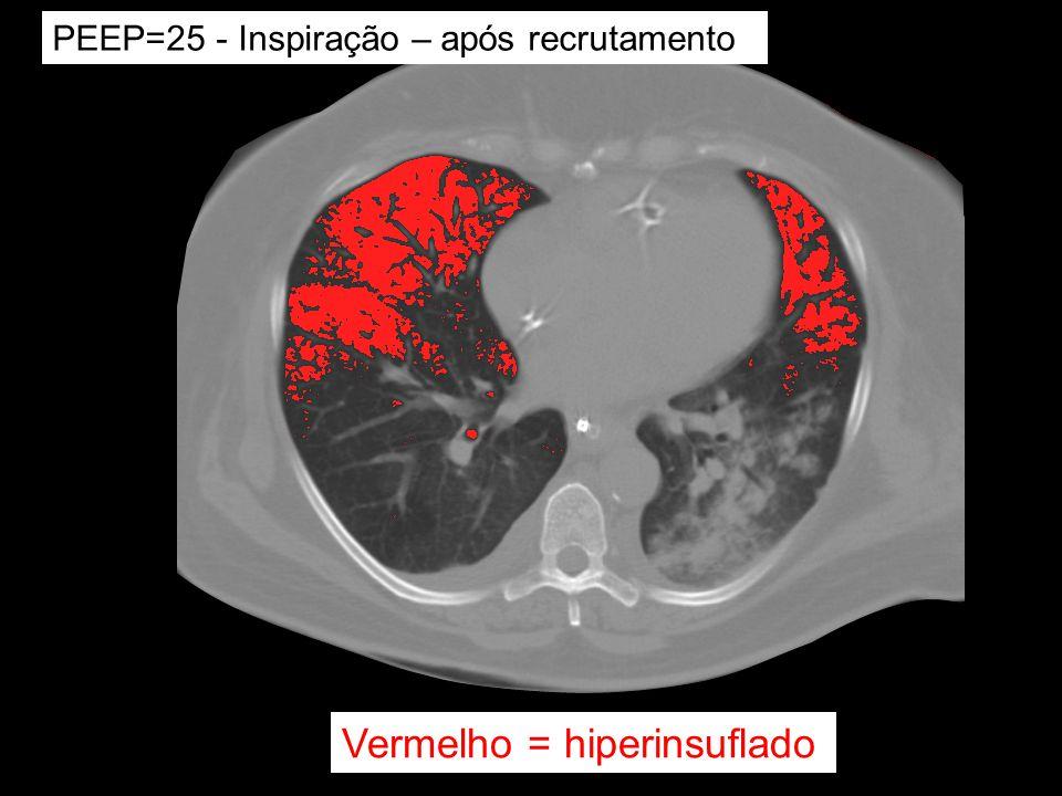 PEEP=25 - Inspiração – após recrutamento Vermelho = hiperinsuflado