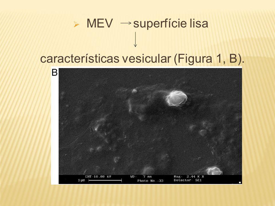  MEV superfície lisa características vesicular (Figura 1, B).