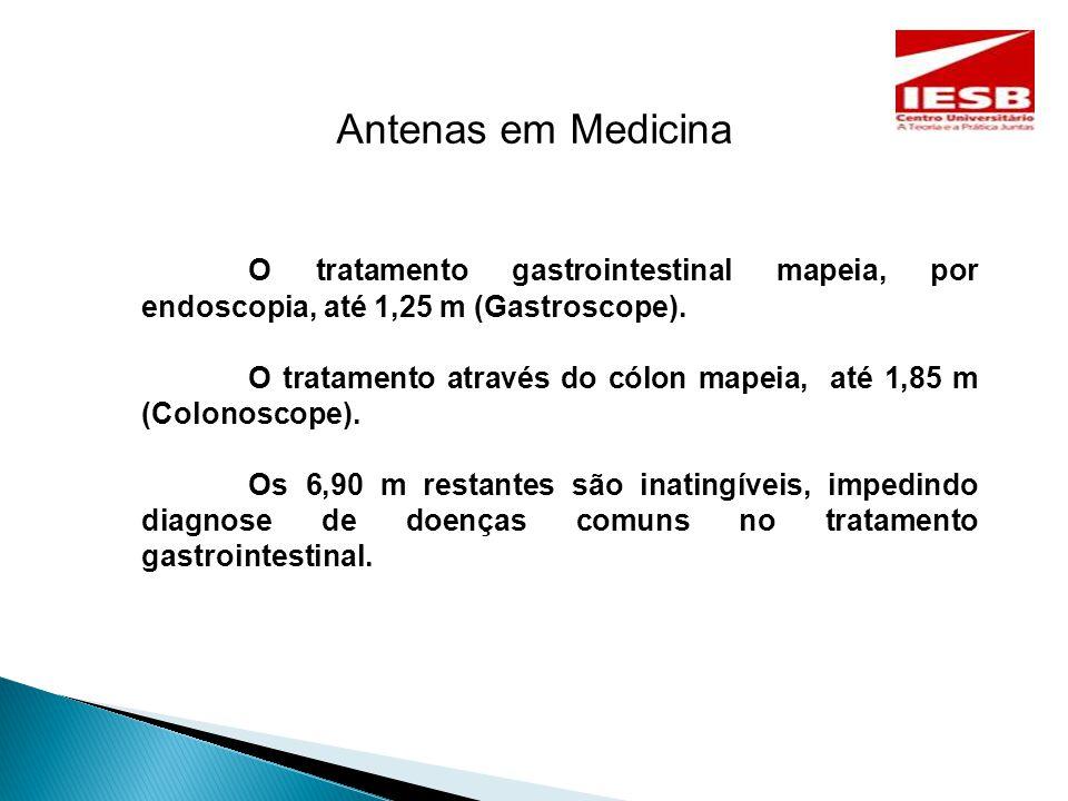 Antenas em Medicina O tratamento gastrointestinal mapeia, por endoscopia, até 1,25 m (Gastroscope).