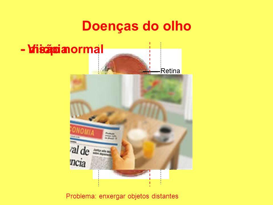Doenças do olho - miopia Problema: enxergar objetos distantes - Visão normal
