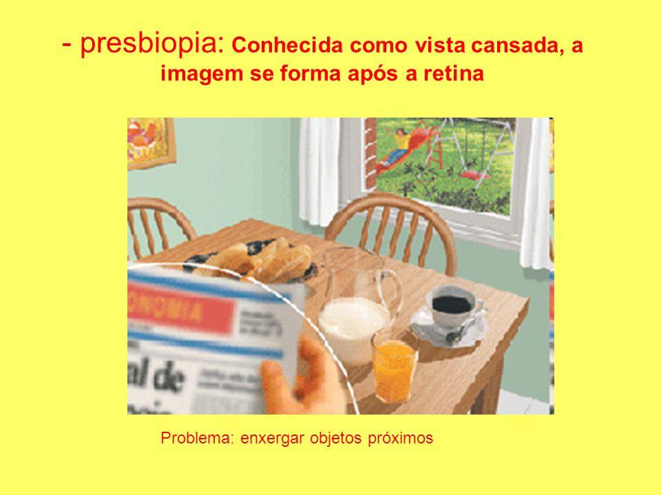 - presbiopia: Conhecida como vista cansada, a imagem se forma após a retina Problema: enxergar objetos próximos