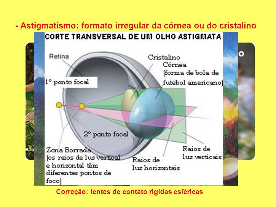 - Astigmatismo: formato irregular da córnea ou do cristalino Correção: lentes de contato rígidas esféricas