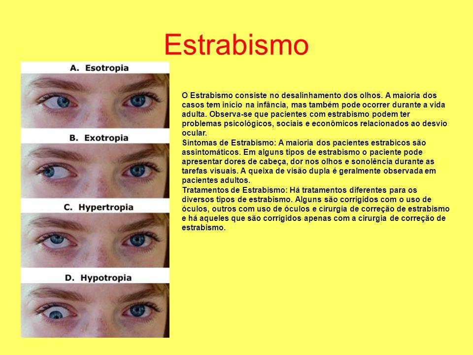 Estrabismo O Estrabismo consiste no desalinhamento dos olhos. A maioria dos casos tem início na infância, mas também pode ocorrer durante a vida adult