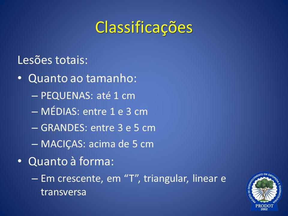 Classificações Lesões totais: Quanto ao tamanho: – PEQUENAS: até 1 cm – MÉDIAS: entre 1 e 3 cm – GRANDES: entre 3 e 5 cm – MACIÇAS: acima de 5 cm Quan