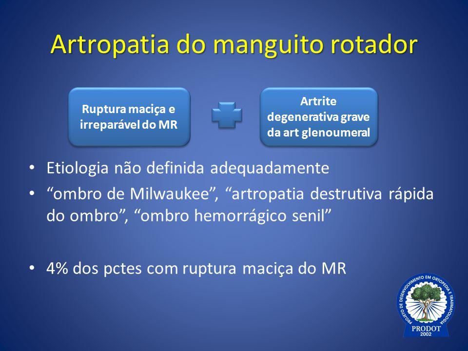 """Artropatia do manguito rotador Etiologia não definida adequadamente """"ombro de Milwaukee"""", """"artropatia destrutiva rápida do ombro"""", """"ombro hemorrágico"""