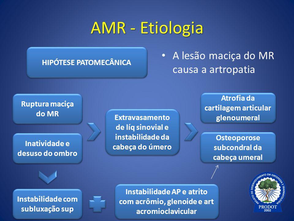 AMR - Etiologia A lesão maciça do MR causa a artropatia HIPÓTESE PATOMECÂNICA Extravasamento de líq sinovial e instabilidade da cabeça do úmero Inativ