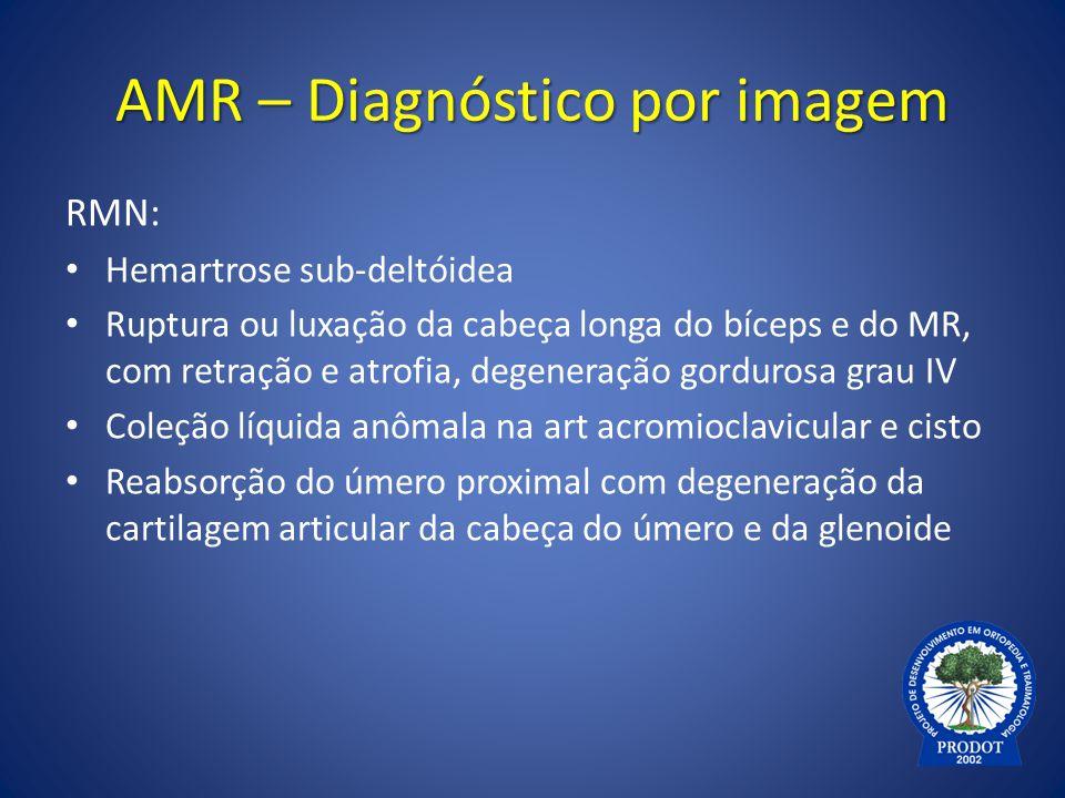 AMR – Diagnóstico por imagem RMN: Hemartrose sub-deltóidea Ruptura ou luxação da cabeça longa do bíceps e do MR, com retração e atrofia, degeneração g