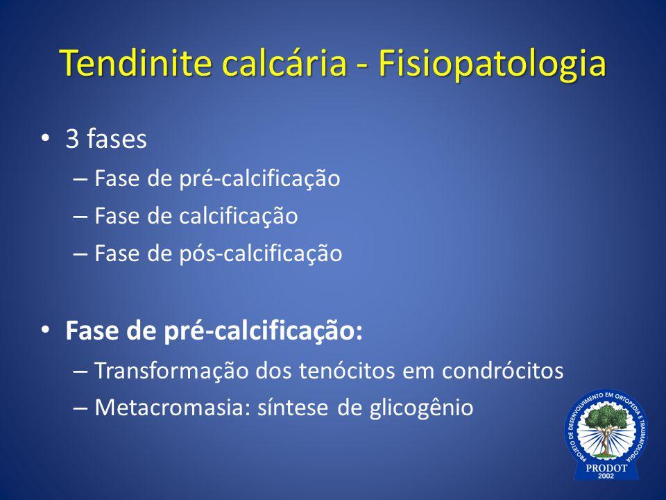Tendinite calcária - Fisiopatologia 3 fases – Fase de pré-calcificação – Fase de calcificação – Fase de pós-calcificação Fase de pré-calcificação: – T