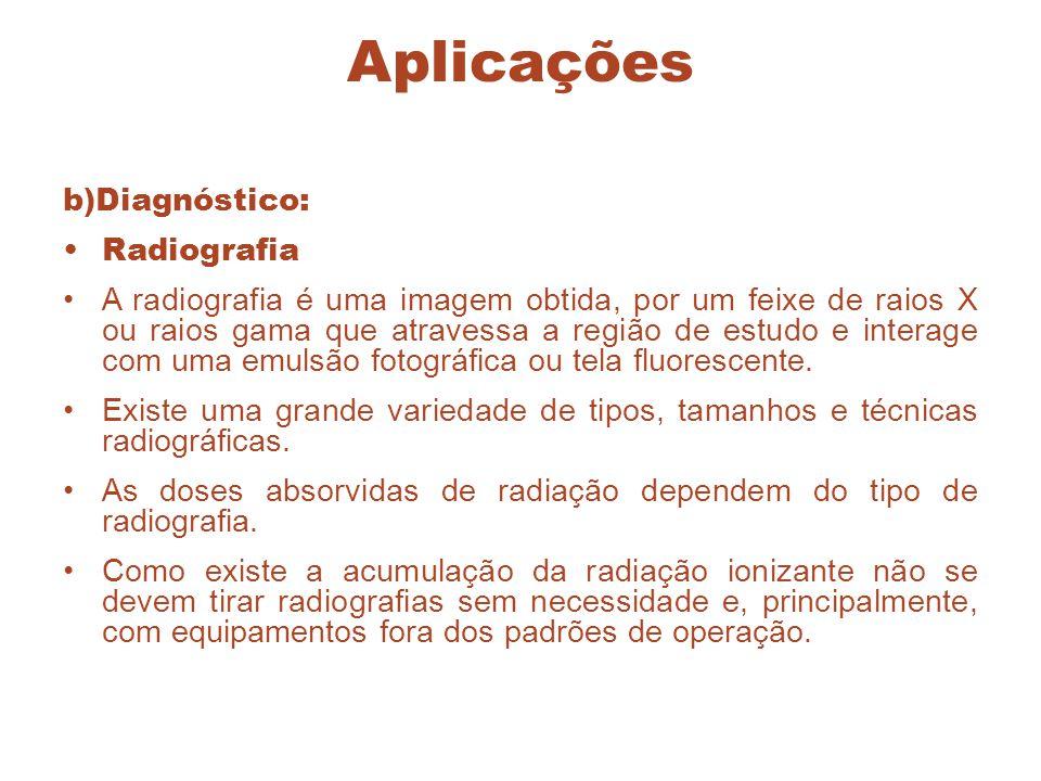 Aplicações b)Diagnóstico: Radiografia A radiografia é uma imagem obtida, por um feixe de raios X ou raios gama que atravessa a região de estudo e inte