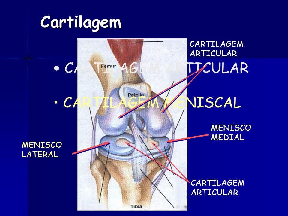 Cartilagem CARTILAGEM ARTICULAR CARTILAGEM MENISCAL CARTILAGEM ARTICULAR CARTILAGEM ARTICULAR MENISCO LATERAL MENISCO MEDIAL
