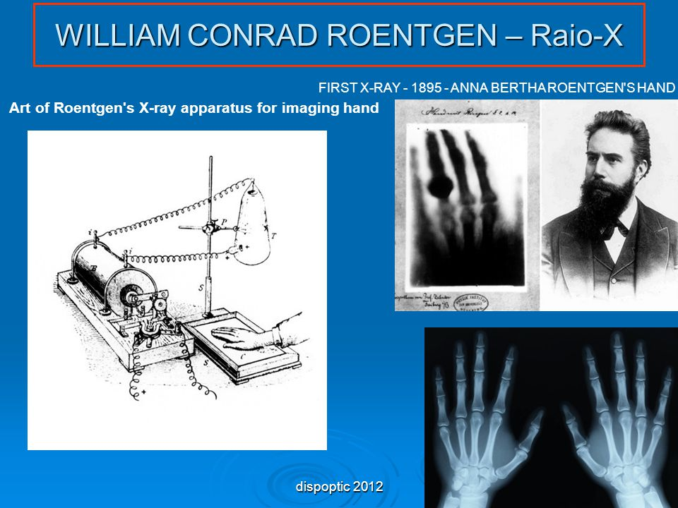 50 WILLIAM CONRAD ROENTGEN – Raio-X Art of Roentgen s X-ray apparatus for imaging hand FIRST X-RAY - 1895 - ANNA BERTHA ROENTGEN S HAND dispoptic 2012