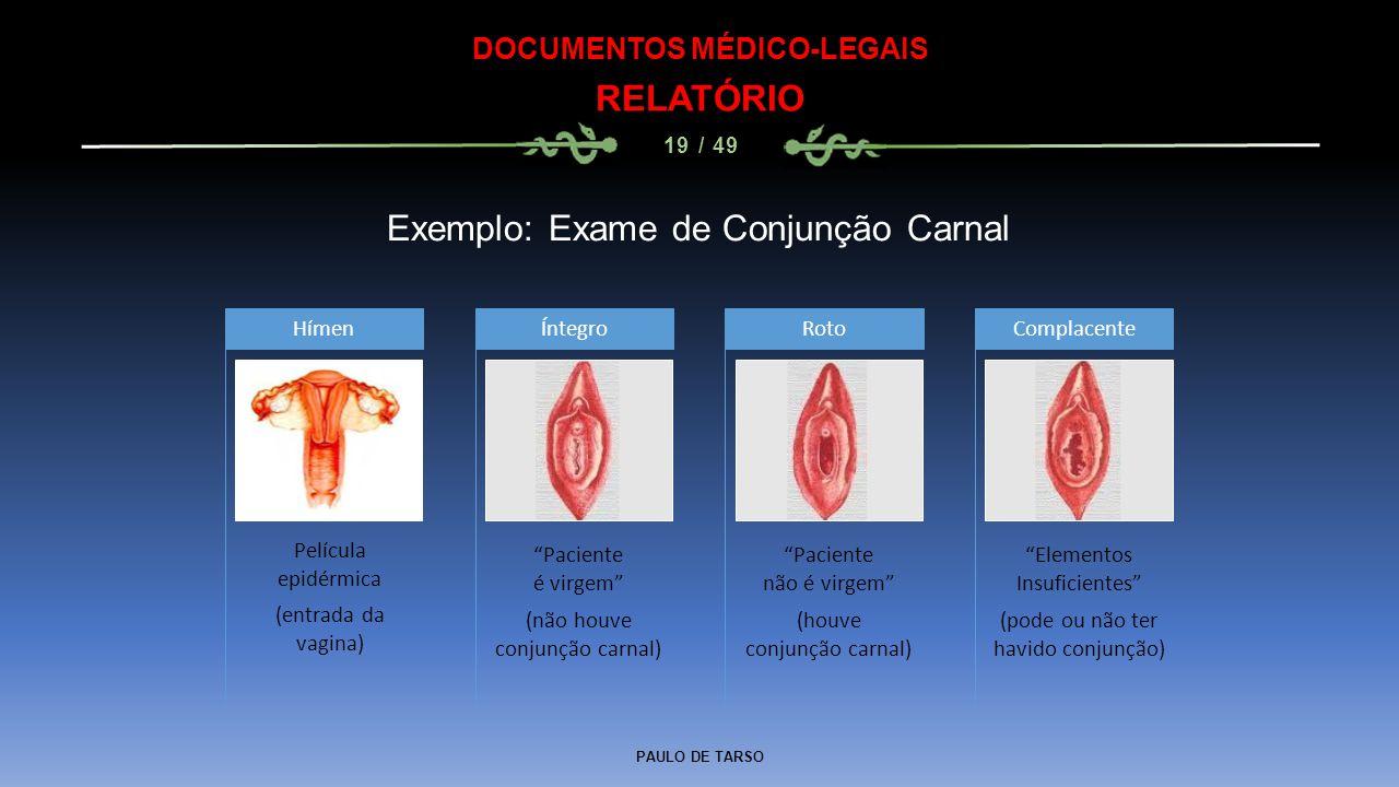 """PAULO DE TARSO DOCUMENTOS MÉDICO-LEGAIS RELATÓRIO 19 / 49 Exemplo: Exame de Conjunção Carnal Hímen """"Paciente é virgem"""" (não houve conjunção carnal) Ín"""