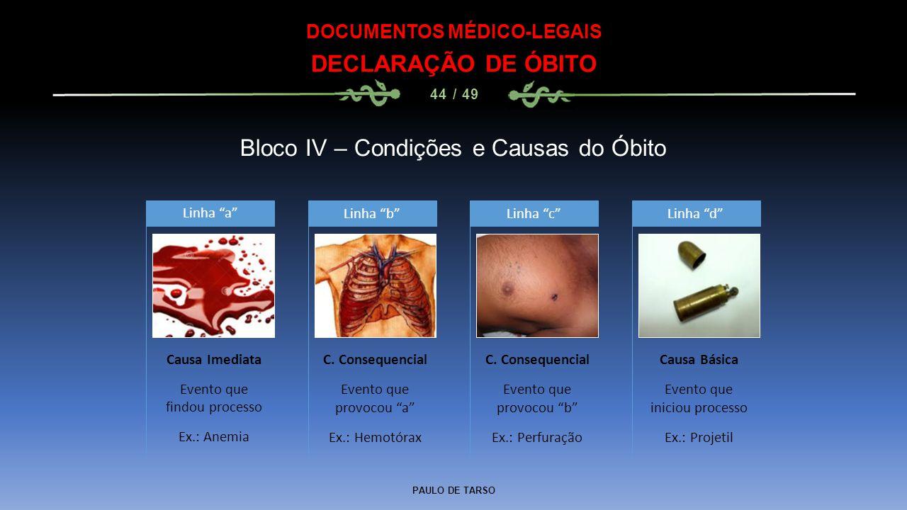 """PAULO DE TARSO DOCUMENTOS MÉDICO-LEGAIS DECLARAÇÃO DE ÓBITO 44 / 49 Bloco IV – Condições e Causas do Óbito Linha """"a"""" C. Consequencial Evento que provo"""