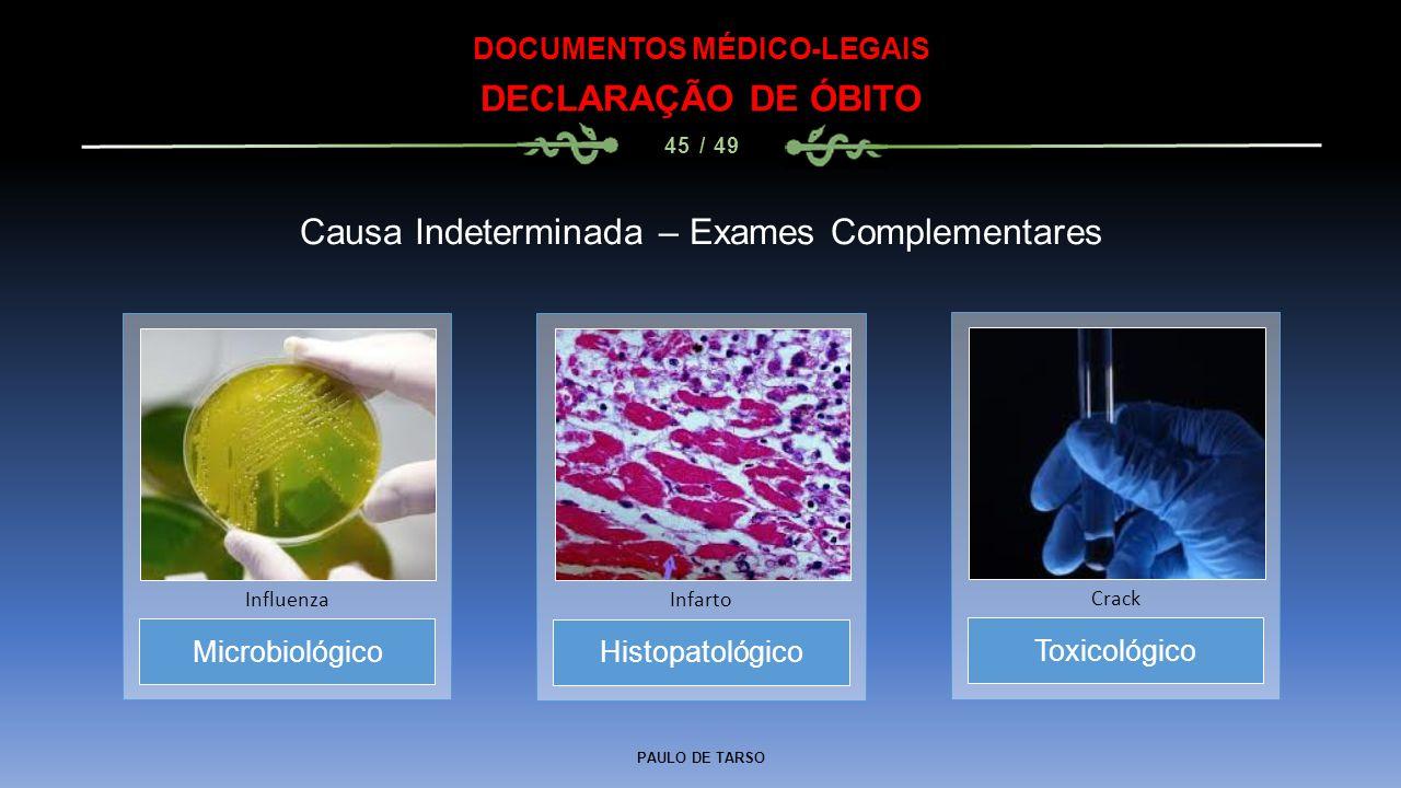 PAULO DE TARSO DOCUMENTOS MÉDICO-LEGAIS DECLARAÇÃO DE ÓBITO 45 / 49 Microbiológico Influenza Causa Indeterminada – Exames Complementares Histopatológi