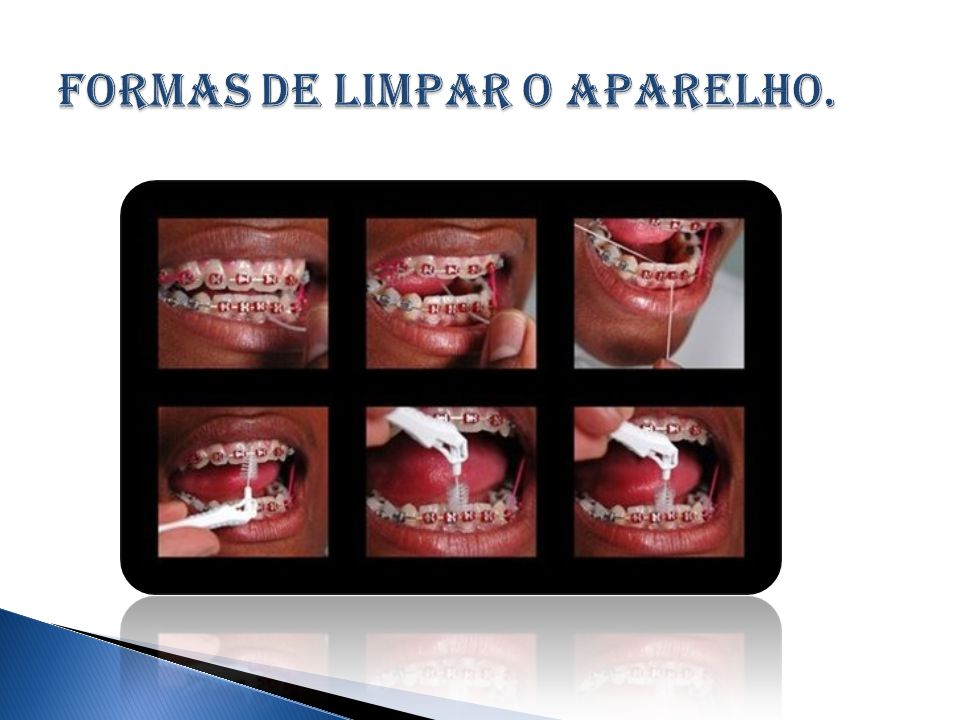  Colgate, http://www.colgate.com.br/app/CP/BR/OC/Information/Articles/Cosmetic- Dentistry/Orthodontics/Orthodontic-Basics/article/What-is-Orthodontics.cvsp, acessado em 26 de fevereiro de 2013.http://www.colgate.com.br/app/CP/BR/OC/Information/Articles/Cosmetic- Dentistry/Orthodontics/Orthodontic-Basics/article/What-is-Orthodontics.cvsp  Google, http://www.google.com.br/search?hl=pt-BR&gs_rn=5&gs_ri=psy- ab&cp=5&gs_id=q&xhr=t&q=ortodontia&bav=on.2,or.r_gc.r_pw.r_qf.&bvm=bv.431489 75,d.eWU&biw=1249&bih=596&wrapid=tljp1362055438723010&um=1&ie=UTF- 8&tbm=isch&source=og&sa=N&tab=wi&ei=608vUfy8M4um8ASV6oHoBQ, acessado em 28 de fevereiro de 2013.