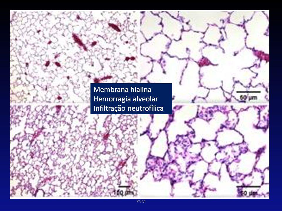 Membrana hialina Hemorragia alveolar Infiltração neutrofílica PVM