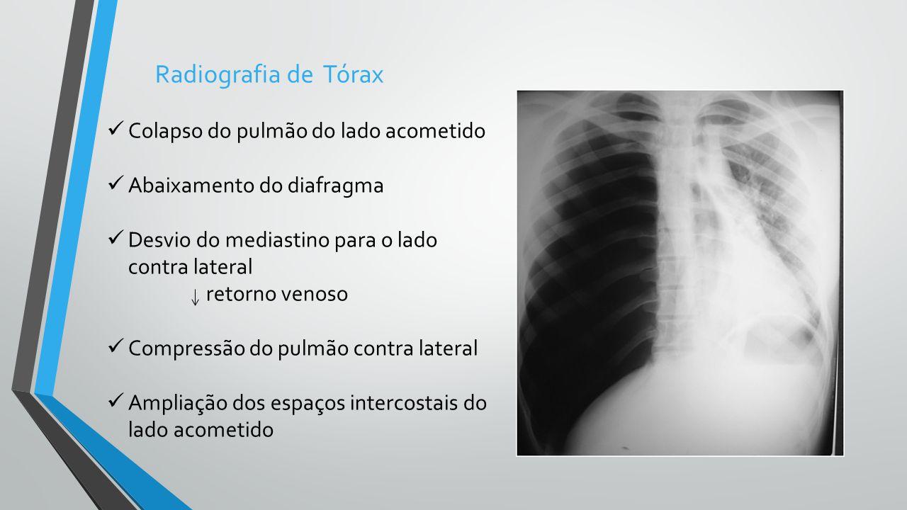Colapso do pulmão do lado acometido Abaixamento do diafragma Desvio do mediastino para o lado contra lateral retorno venoso Compressão do pulmão contr