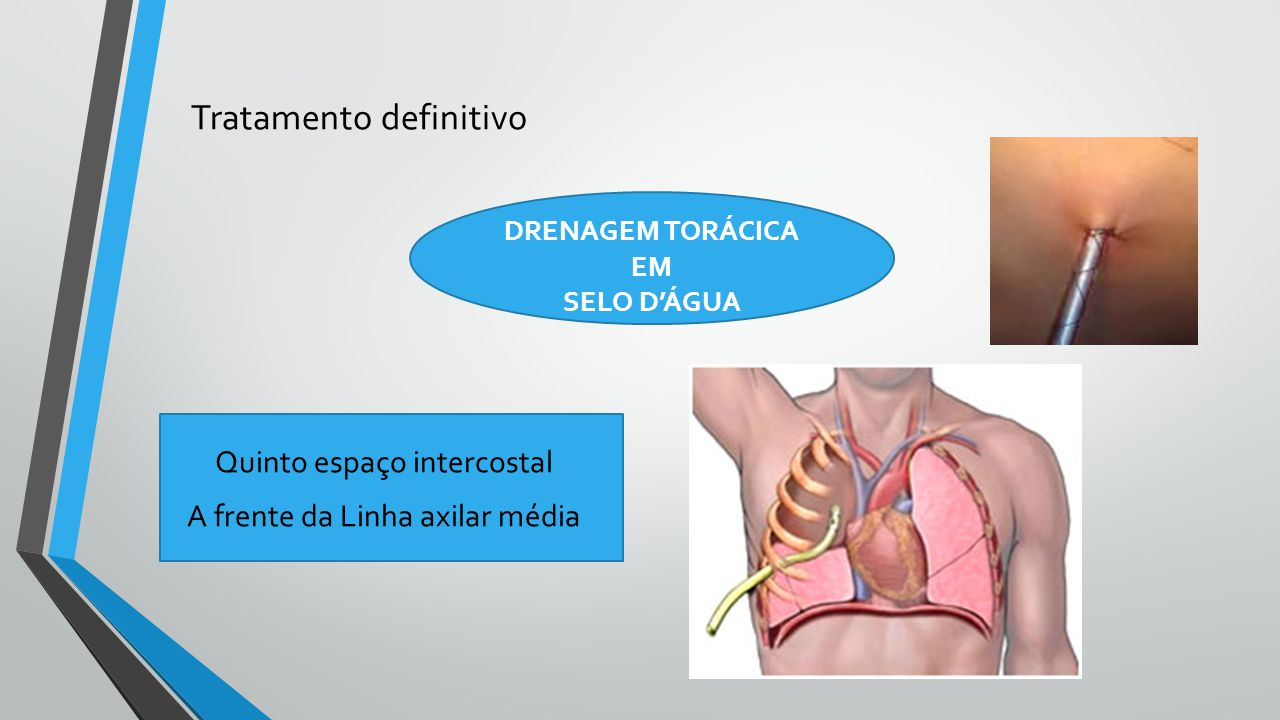 Tratamento definitivo DRENAGEM TORÁCICA EM SELO D'ÁGUA Quinto espaço intercostal A frente da Linha axilar média