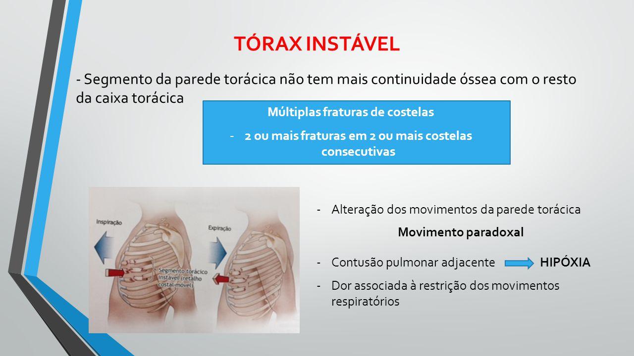 TÓRAX INSTÁVEL - Segmento da parede torácica não tem mais continuidade óssea com o resto da caixa torácica Múltiplas fraturas de costelas -2 ou mais f