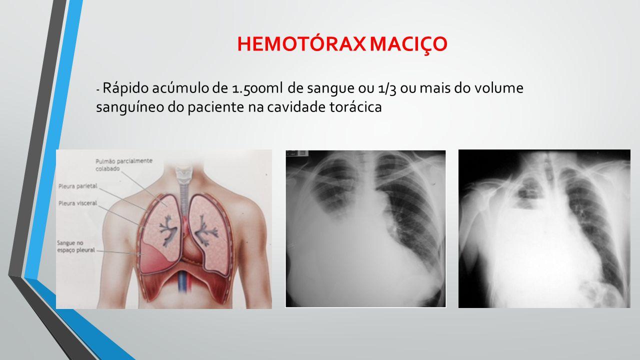 HEMOTÓRAX MACIÇO - Rápido acúmulo de 1.500ml de sangue ou 1/3 ou mais do volume sanguíneo do paciente na cavidade torácica