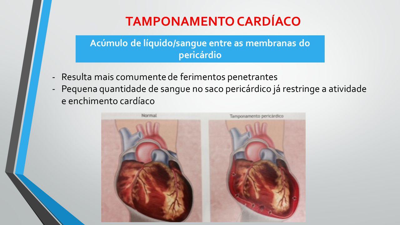 TAMPONAMENTO CARDÍACO -Resulta mais comumente de ferimentos penetrantes -Pequena quantidade de sangue no saco pericárdico já restringe a atividade e e
