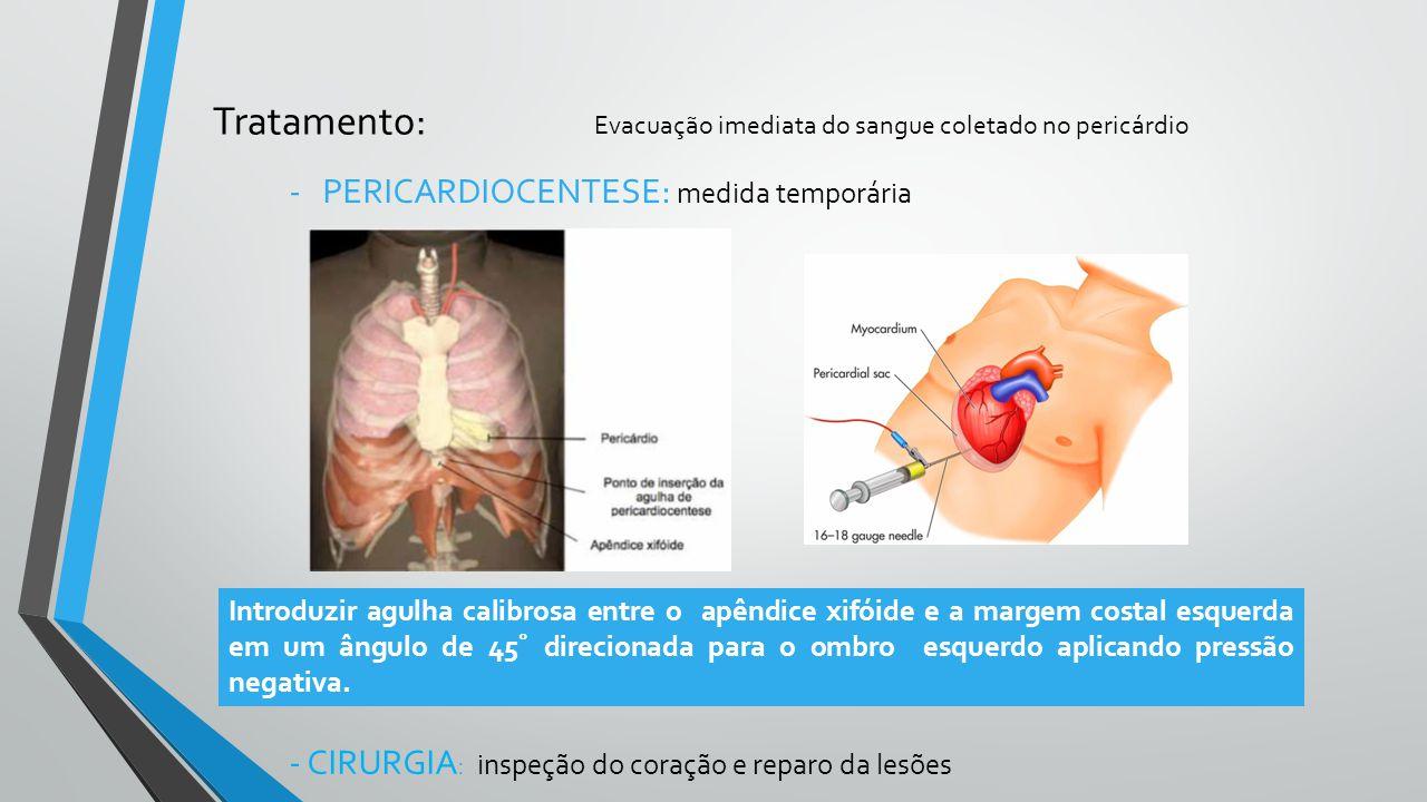 Tratamento: Evacuação imediata do sangue coletado no pericárdio -PERICARDIOCENTESE: medida temporária Introduzir agulha calibrosa entre o apêndice xif