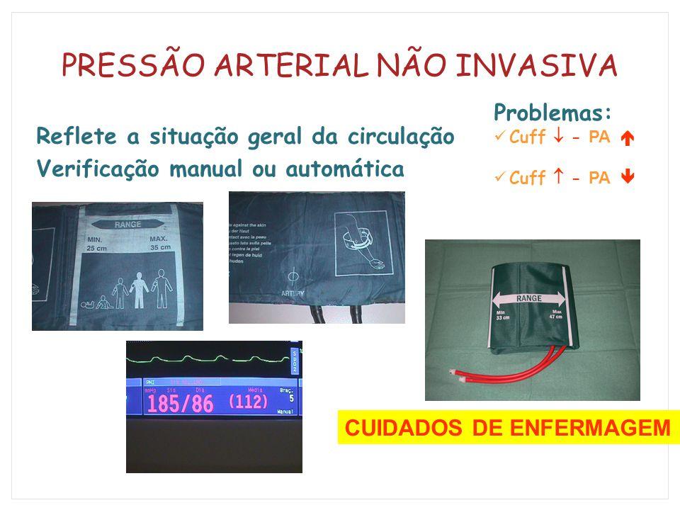 PRESSÃO ARTERIAL NÃO INVASIVA Reflete a situação geral da circulação Verificação manual ou automática Problemas: Cuff  - PA  Cuff  - PA  CUIDADOS