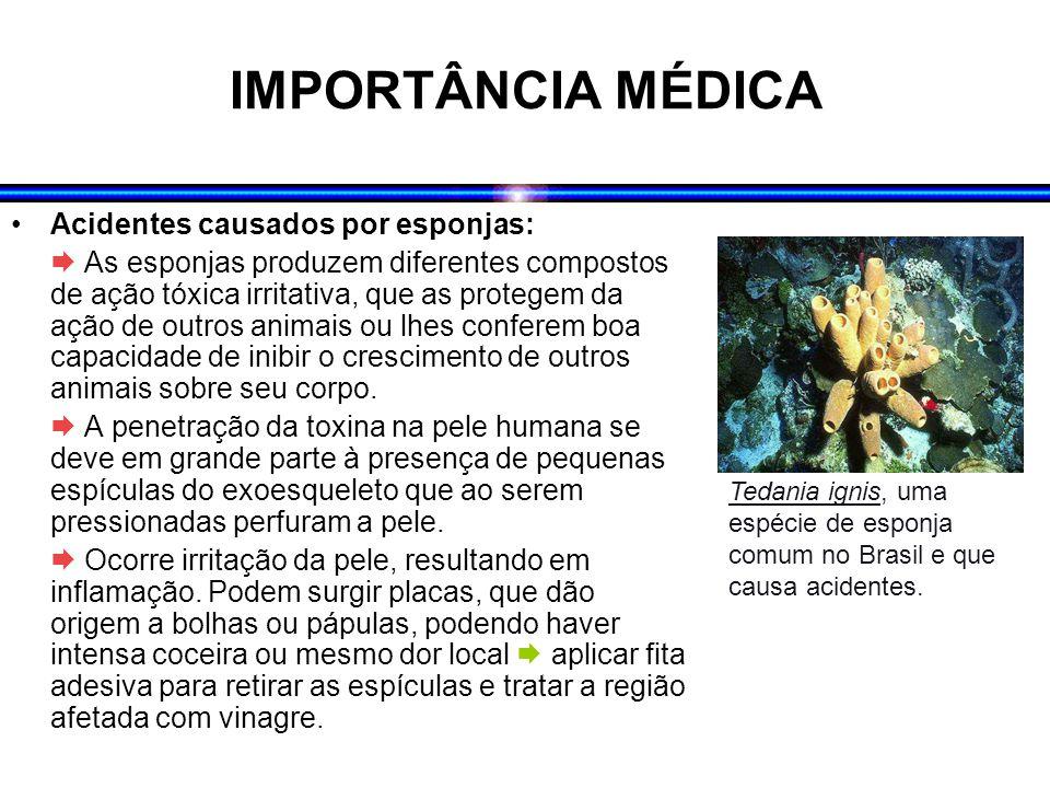 IMPORTÂNCIA MÉDICA Acidentes causados por esponjas:  As esponjas produzem diferentes compostos de ação tóxica irritativa, que as protegem da ação de