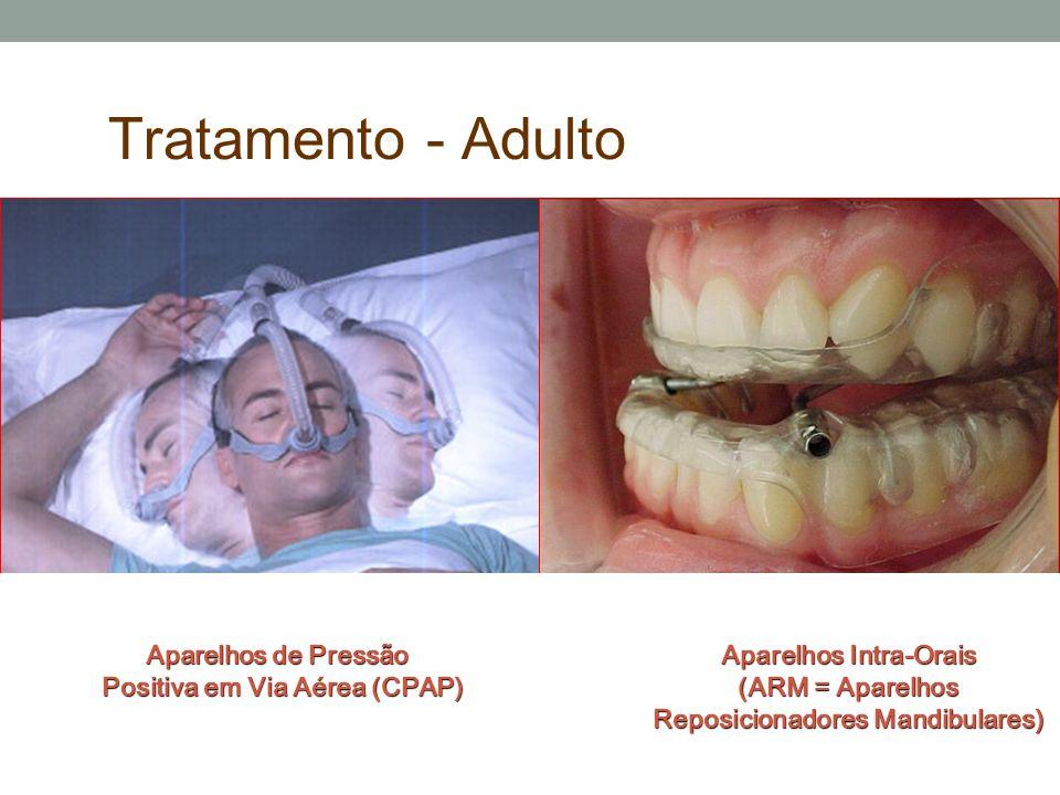 Tolerância ---- CPAP ___ AIO Eficácia Controle de Sintomas Sintomas Benefícios Saúde Saúde Adesão Aceitação Aceitação (paciente e parceiro) Conveniênc