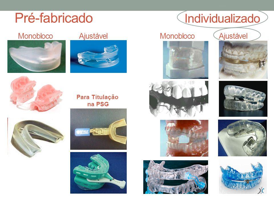 Pré-fabricado Individualizado Monobloco Ajustável Monobloco Ajustável Para Titulação na PSG