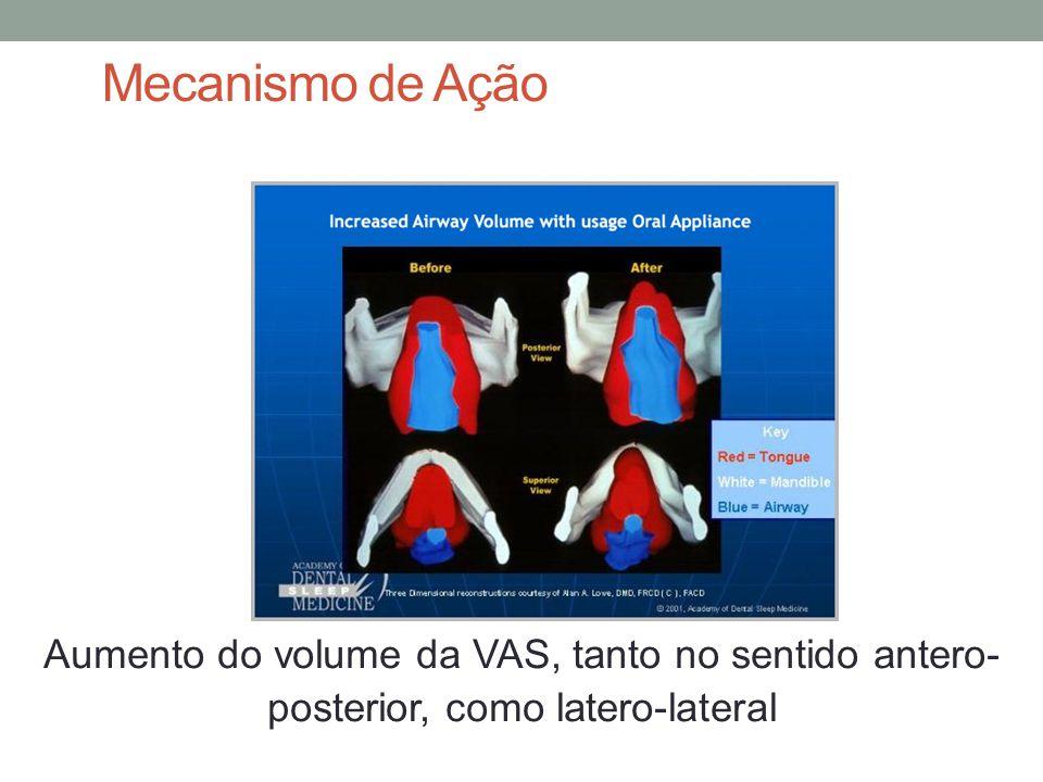 Mecanismo de Ação Aumento do volume da VAS, tanto no sentido antero- posterior, como latero-lateral