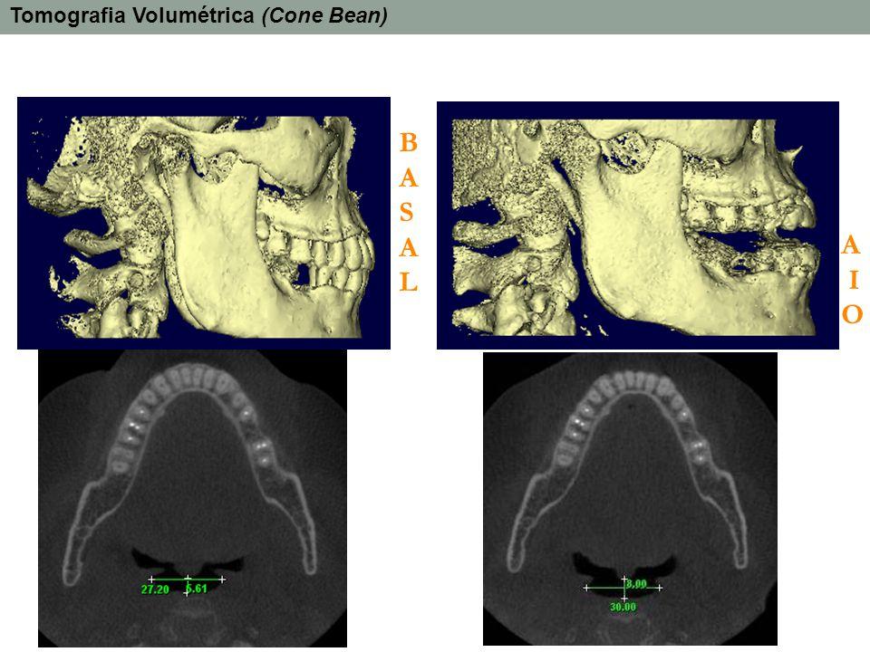 BASALBASAL A I O Tomografia Volumétrica (Cone Bean)