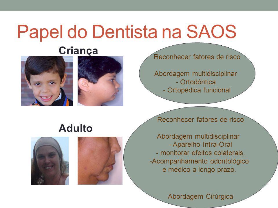 Papel do Dentista na SAOS Reconhecer fatores de risco Abordagem multidisciplinar - Ortodôntica - Ortopédica funcional Criança Adulto Reconhecer fatore