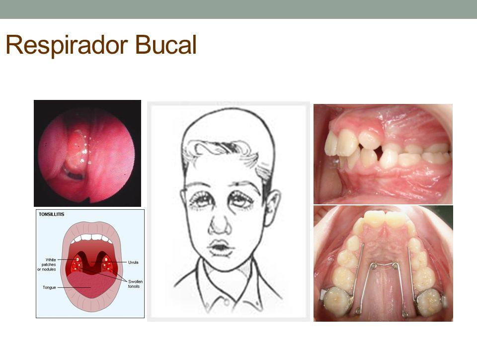 Papel do Dentista na SAOS Reconhecer fatores de risco Abordagem multidisciplinar - Ortodôntica - Ortopédica funcional Criança Adulto Reconhecer fatores de risco Abordagem multidisciplinar - Aparelho Intra-Oral - monitorar efeitos colaterais.