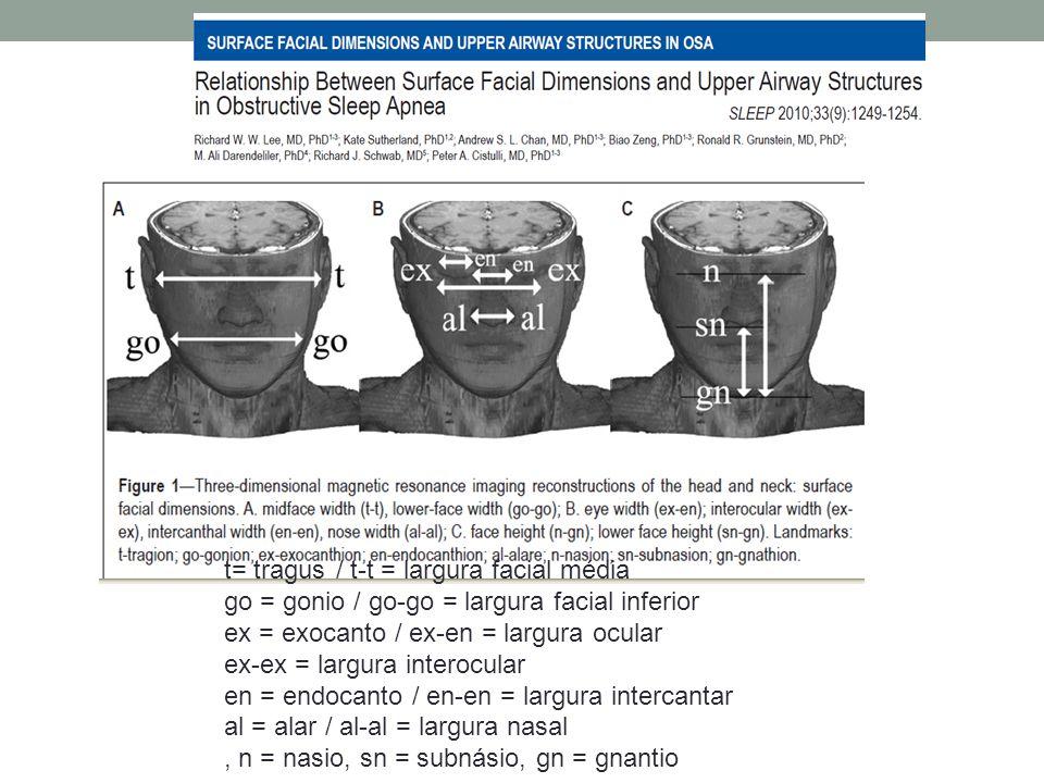 t= tragus / t-t = largura facial média go = gonio / go-go = largura facial inferior ex = exocanto / ex-en = largura ocular ex-ex = largura interocular