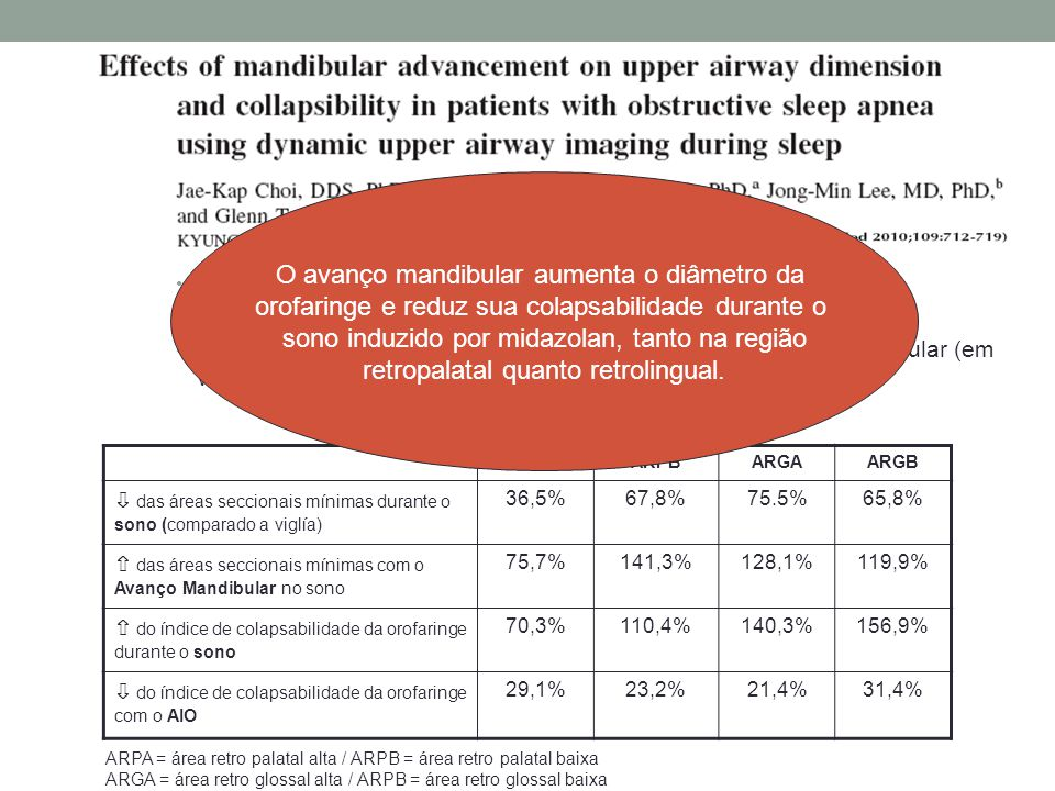 n=16 (SAOS leve a grave) AIO com 67% do avanço máximo TC - tamanho e colapsabilidade da orofaringe com o avanço mandibular (em vigília e no sono induz