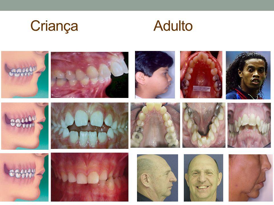 Tratamento - Criança Cirurgia Adenóides / Tonsilas Tratamento Ortodôntico / Fonoterapia Tonsilas palatinas Adenóide