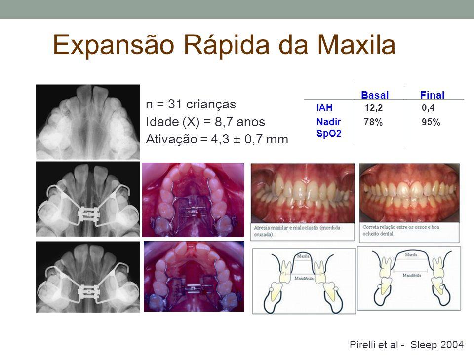 Expansão rápida da maxila ⇑ volume da cavidade nasal Principato, 1991 ⇑ volume do espaço aéreo Schutz et al, 2011 ⇓ IAH Principato, 1991; Pirelli et al., 1995; Villa et al., 2002 ⇓ eventos de limitação de fluxo aéreo Schutz et al, 2011 ⇓resistência VAS Kurol et al 1998; Bicakci e Agar, 2005 87,5% das crianças necessitaram de cirurgia + expansão de maxila para a completa eliminação da SAOS (n=32) Guilleminaut et al., Sleep 2008