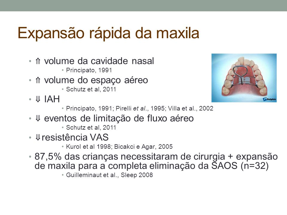Expansão rápida da maxila ⇑ volume da cavidade nasal Principato, 1991 ⇑ volume do espaço aéreo Schutz et al, 2011 ⇓ IAH Principato, 1991; Pirelli et a