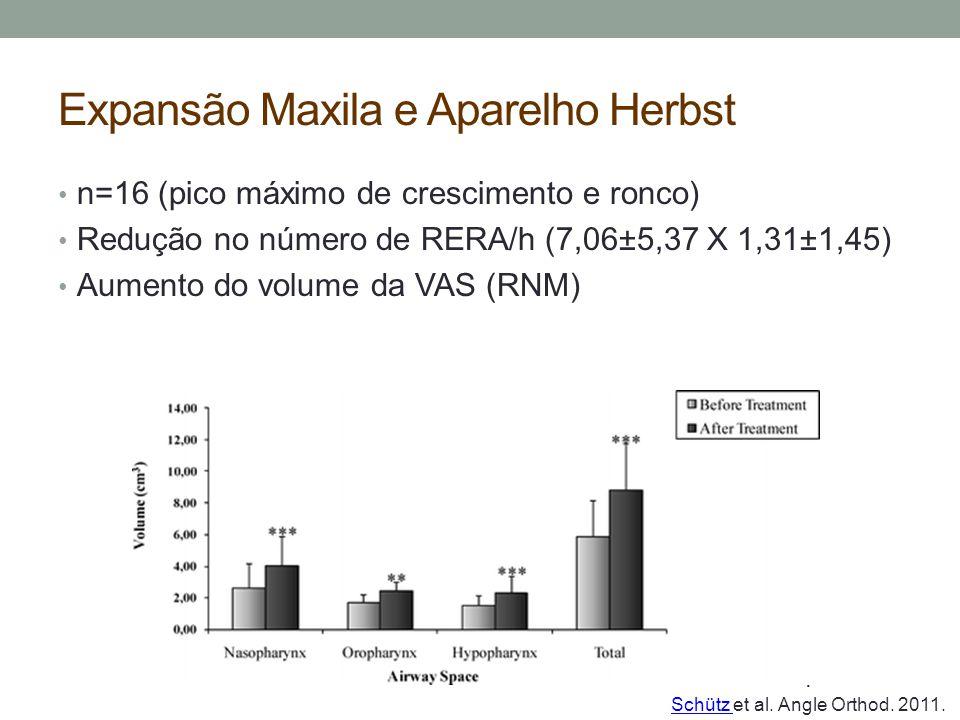 Expansão Maxila e Aparelho Herbst n=16 (pico máximo de crescimento e ronco) Redução no número de RERA/h (7,06±5,37 X 1,31±1,45) Aumento do volume da V
