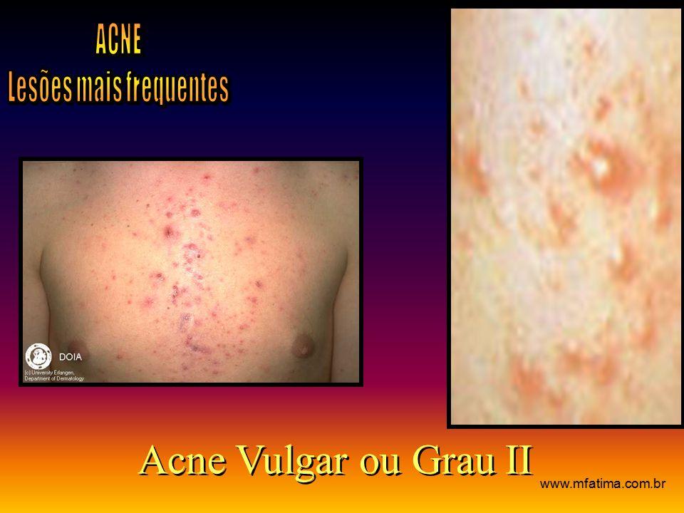 Acne Vulgar ou Grau II www.mfatima.com.br