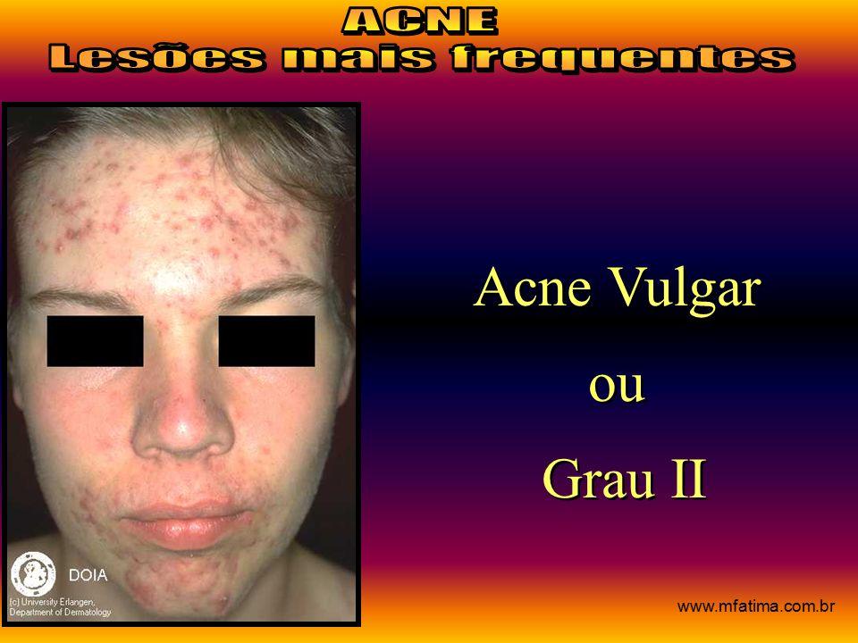 Acne Vulgar ou Grau II Acne Vulgar ou Grau II www.mfatima.com.br